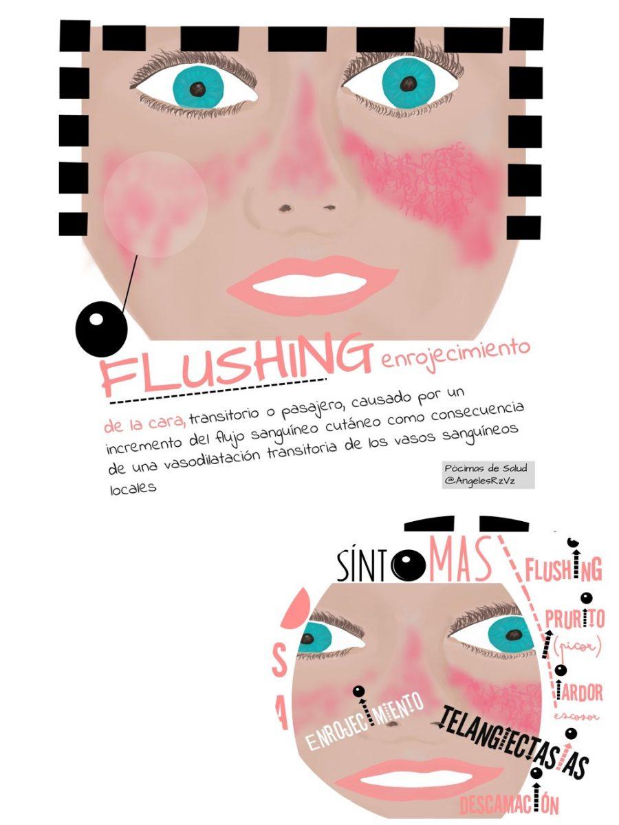 Flushing Rosácea