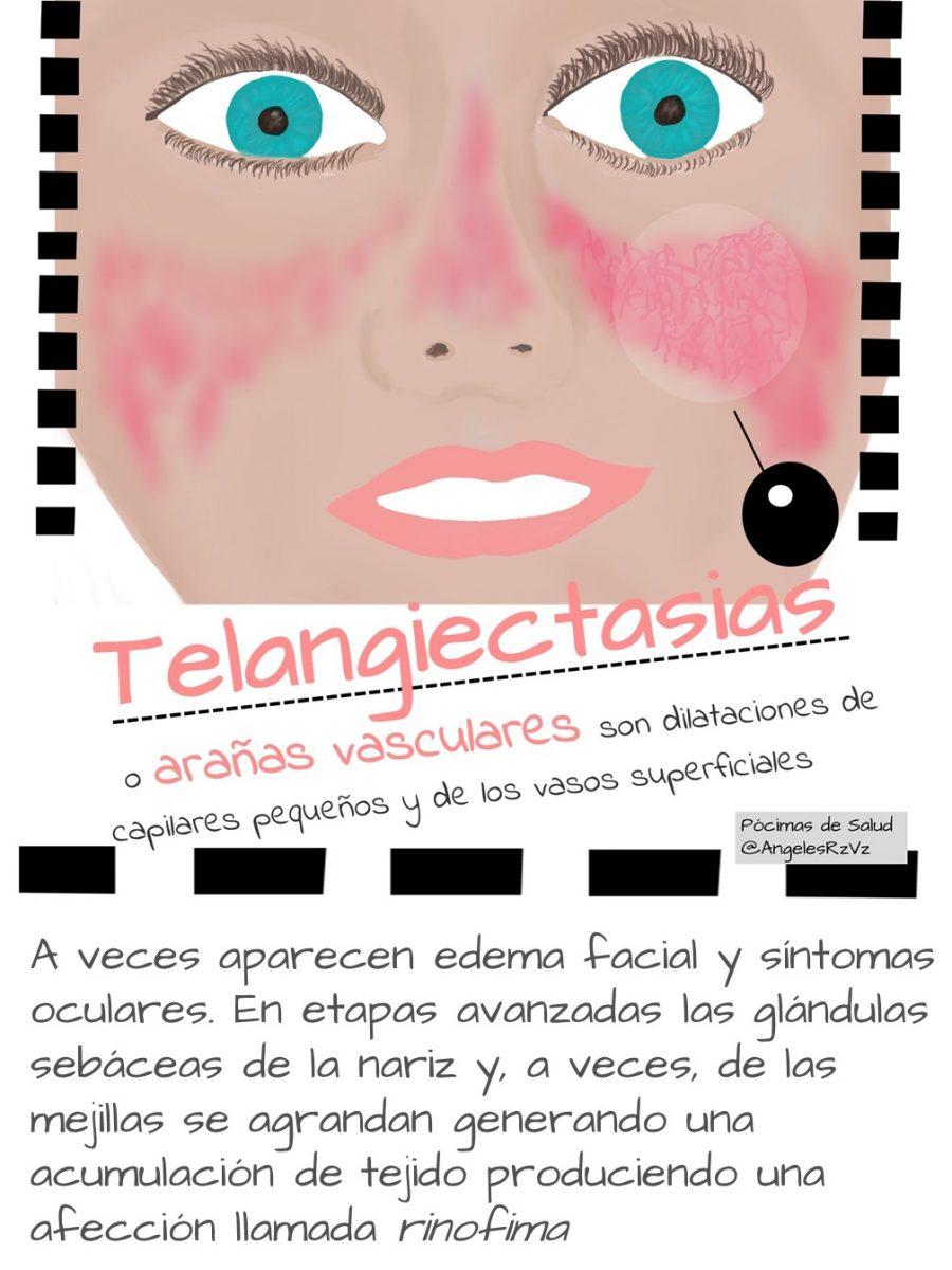Telangiectasias