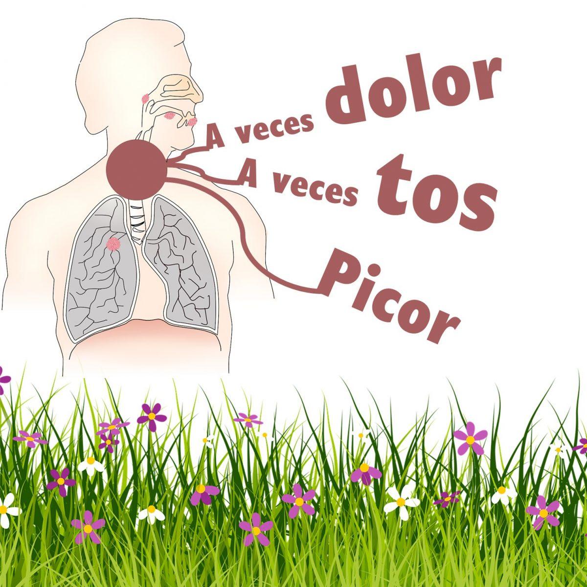síntomas rinitis alérgica garganta