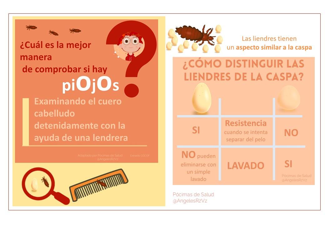 20 preguntas frecuentes sobre piojos. como distinguir liendres de caspa